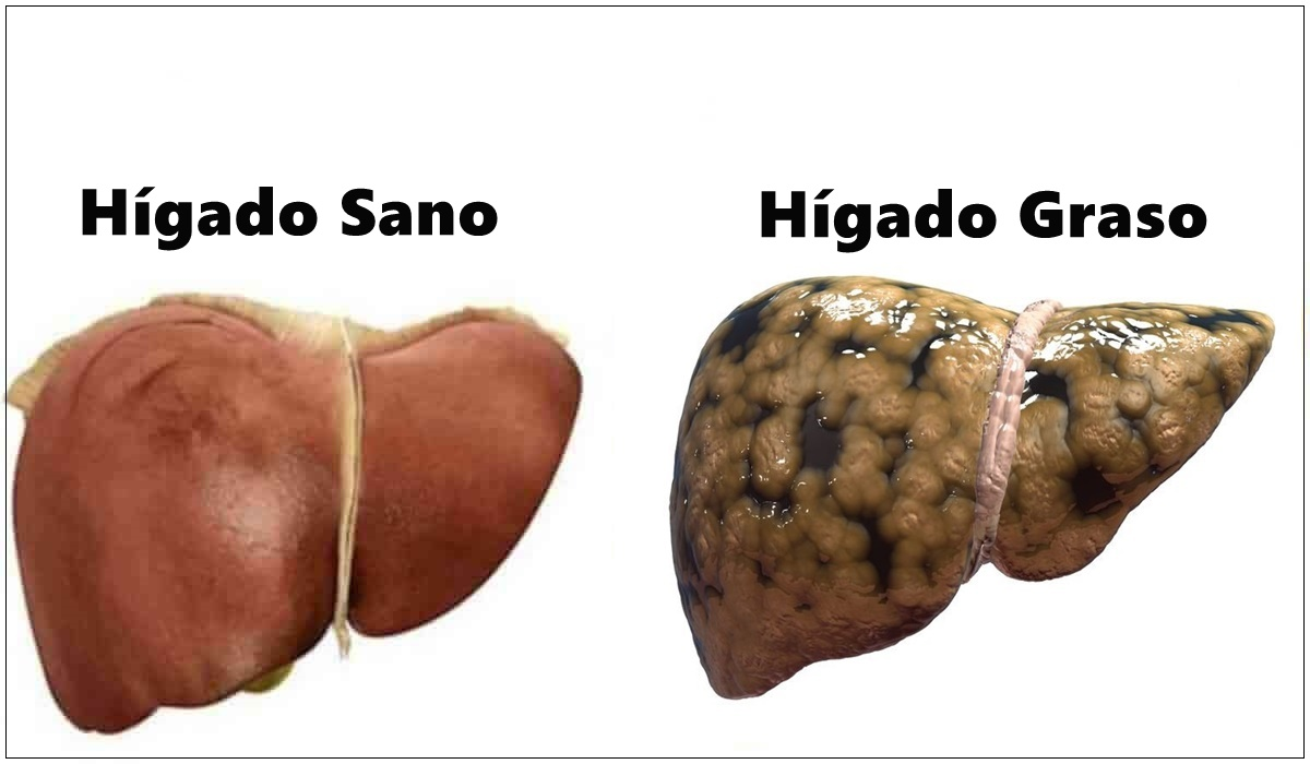 piedras en el higado en ingles