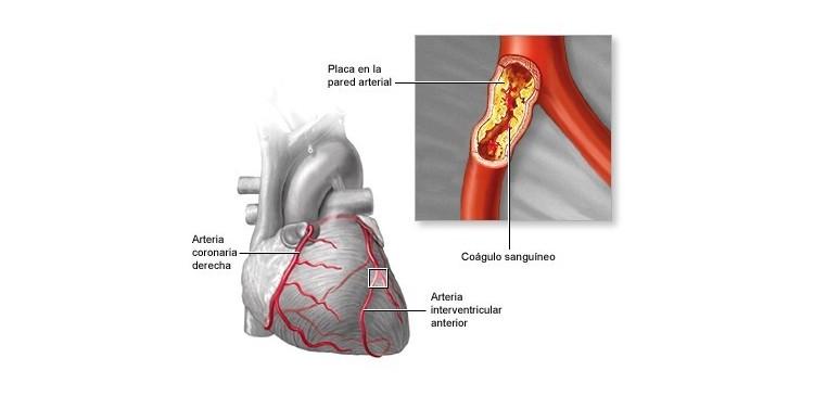 Cómo revertir los depósitos de calcio en las arterias coronarias (Artereoesclerosis)
